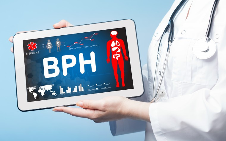Updated guidelines for BPH treatment