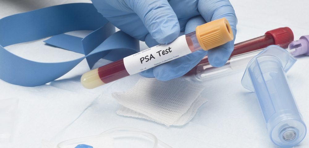 Diagnosis of Prostate Cancer Requires Tests Beyond Total PSA Value