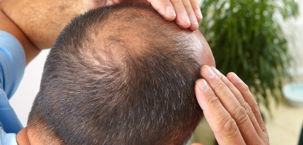 Male Baldness Likely an Early Warning of BPH in Later Years, Study Says