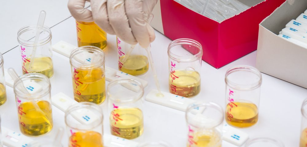 Urine Protein Analysis Can Be Invaluable for Studying BPH