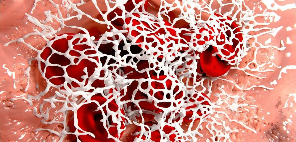 'Glue' Injection Cuts Blood Loss in BPH Patients Undergoing TURP, Study Shows